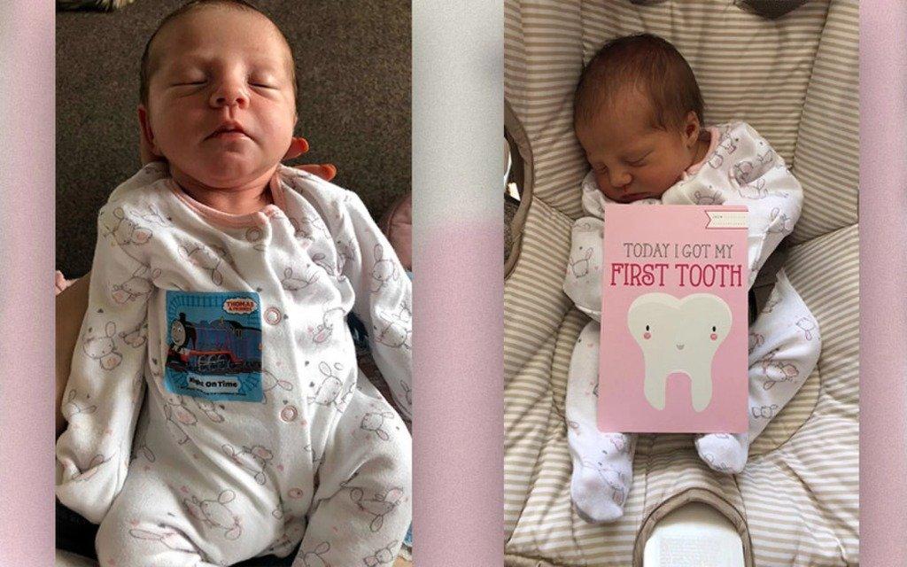 У Исла-Роуз Хейсман выдернули первый зуб, когда ей было всего 12 дней.