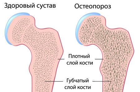 губчатый слой кости