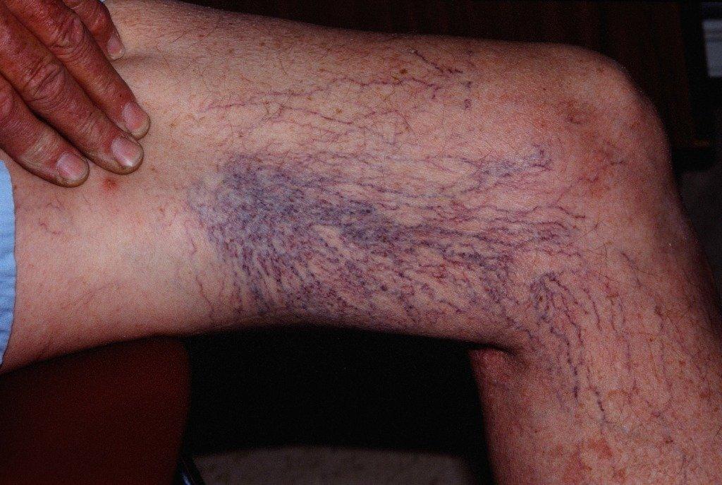 Телангиэктазии ног очень распространены у пожилых пациентов.
