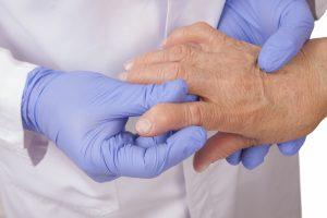 врач смотрит пальцы пациента с артритом