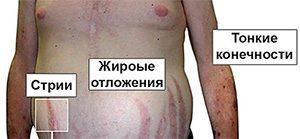 как выглядят симптомы синдрома Иценко-Кушинга фото