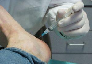врач делает укол в пятку пациенту с пяточной шпорой