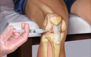 врач делает пациенту укол в колено рисунок