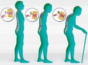 как развивается остеопороз рисунок