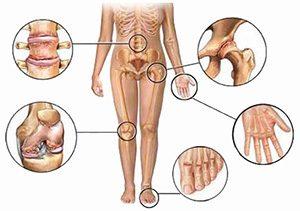 в каких местах бывает ревматоидный артрит рисунок