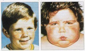 как выглядит мальчик до и после болезни Иценко-Кушинга фото