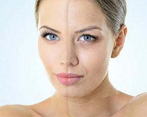 как выглядит старение кожи