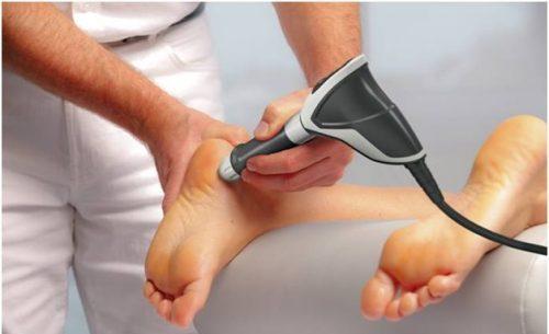 врач лечит пяточную шпору с помощью ударно-волновой терапии