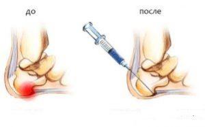 Шпора на пятке лечение медикаментозное